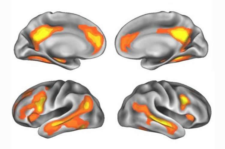 Image shows the brain regions affected by pregnancy.