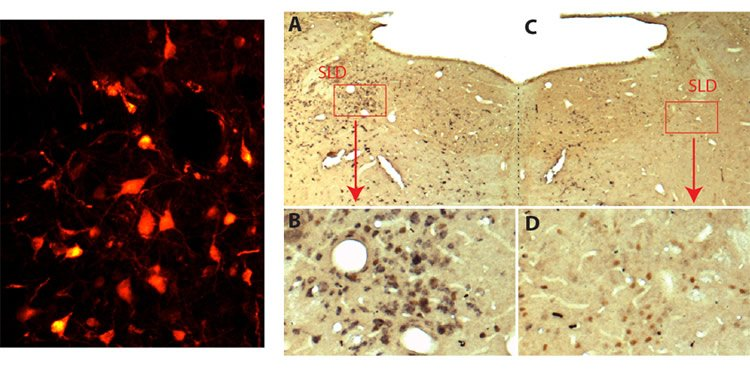 Image shows a brain slice with glutamate neurons.