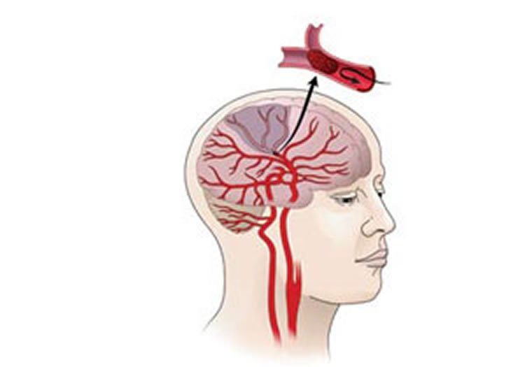 Image shows an illustration of how an ischemic stroke occurs.
