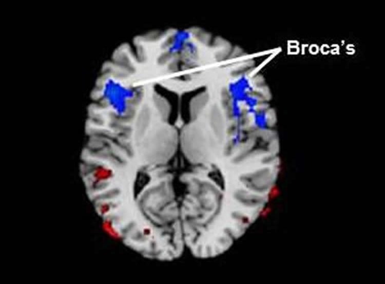 Image shows a brain scan with the Broca's area highlighted.