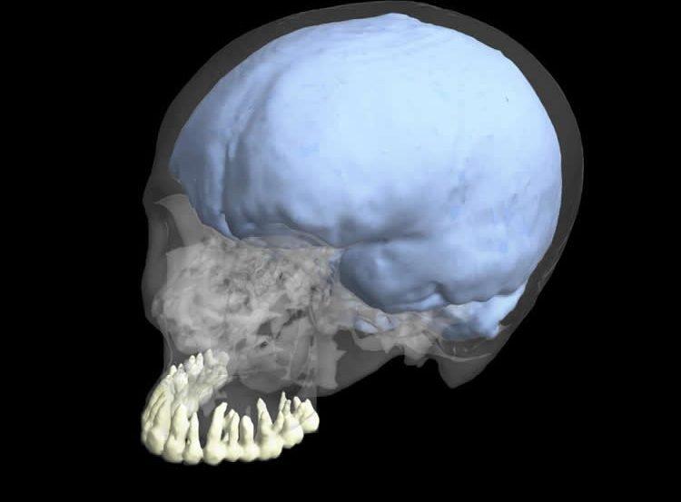 a skull.
