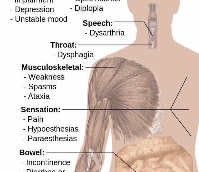 Image shows aa Alzheimer's brain.