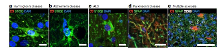 Image shows neurons and astrocytes.