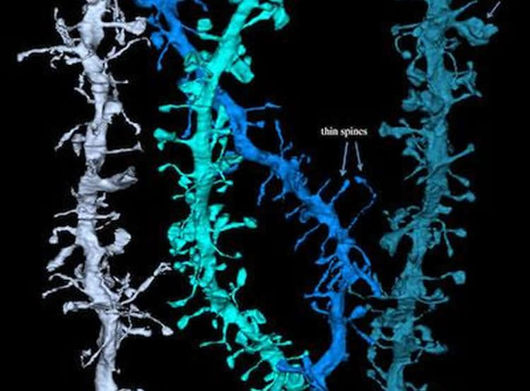 Image shows dendrites.