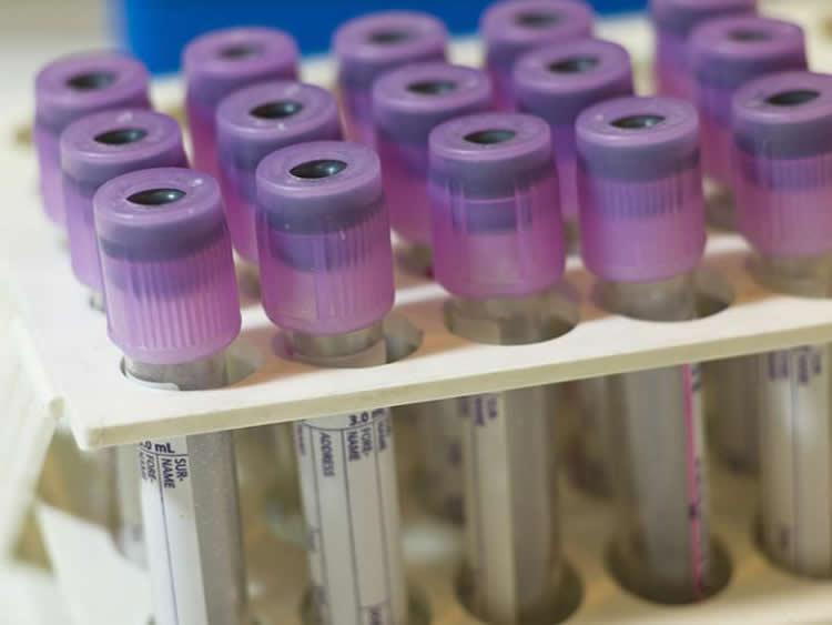 Image shows blood test tubes.