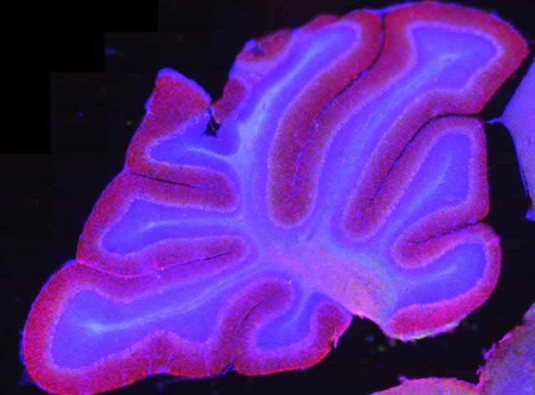 Image shows a slice of a rat's cerebellum.