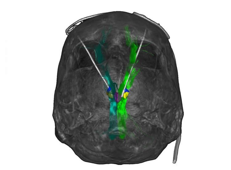 Image shows a brain scan with the deep brain stimulation areas highlighted.