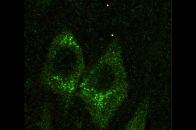 Image shows a hippocampal slice from a person with Fragile X.
