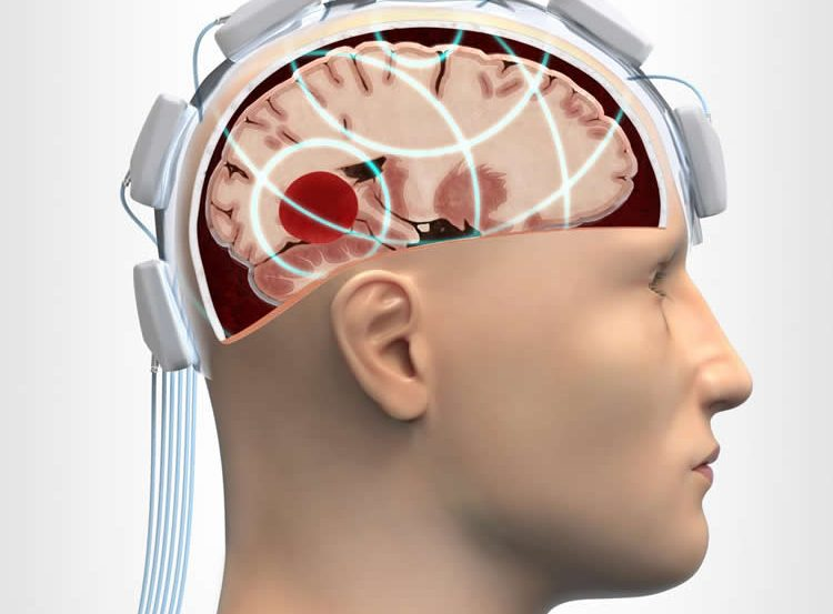 Image shows a diagram of the head injury microwave helmet.