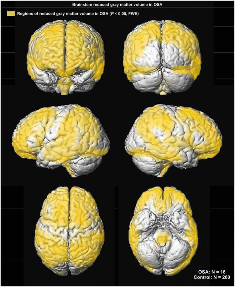 Image shows brain scans of kids with sleep apnea.