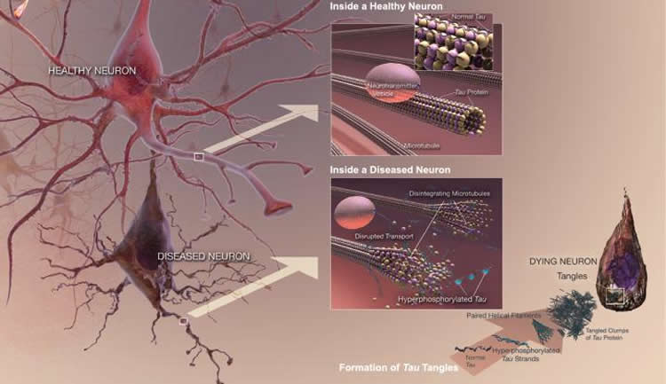 Image shows a diseased neuron in Alzheimer's dementia.