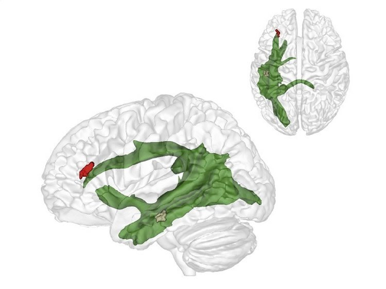 Image shows the locations of the temporal and frontal lobes in the human brain.