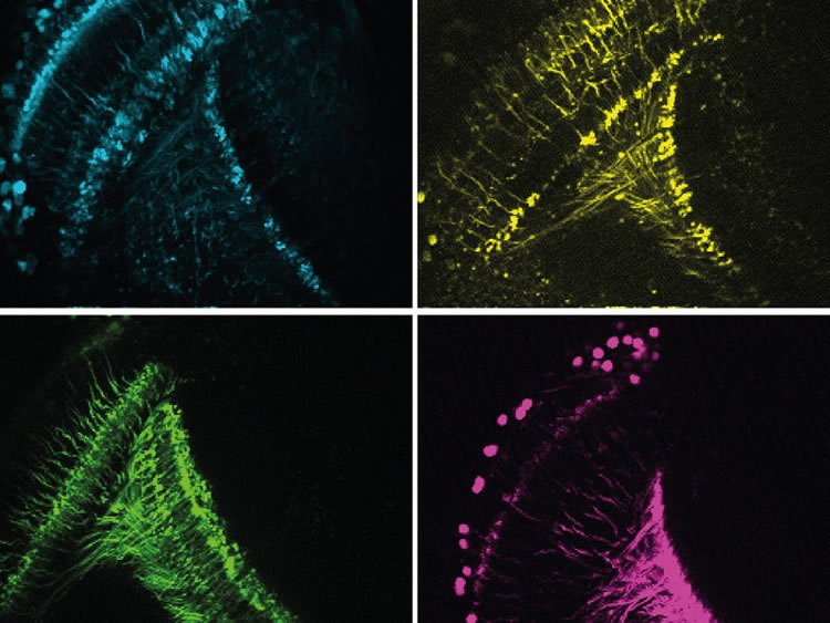 Image shows fly neurons.