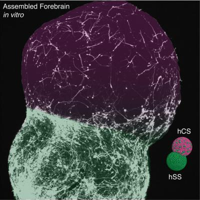 Image shows forebrain tissue.