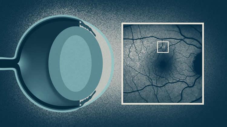 Image shows the lipofuscis deposit on a retina.