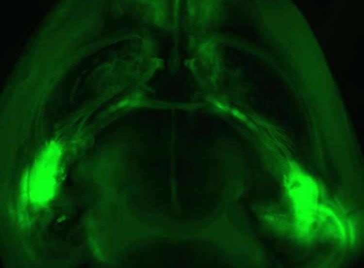 Image shows a mouse brain.