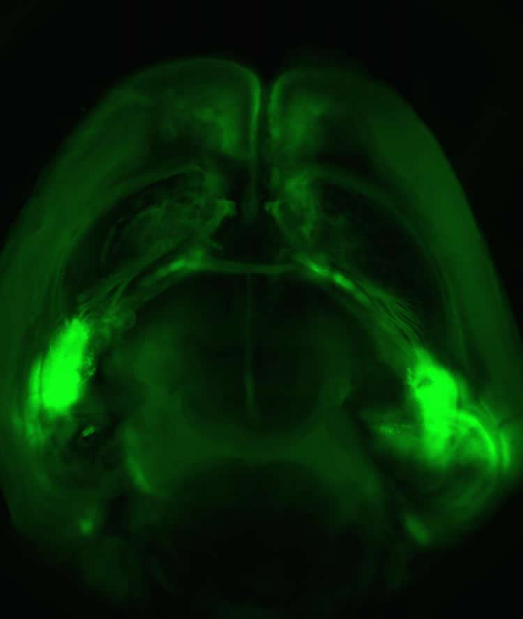 Image shows a mouse brain.