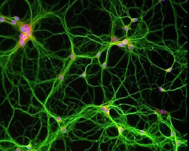 Image shows hippocampal neurons.