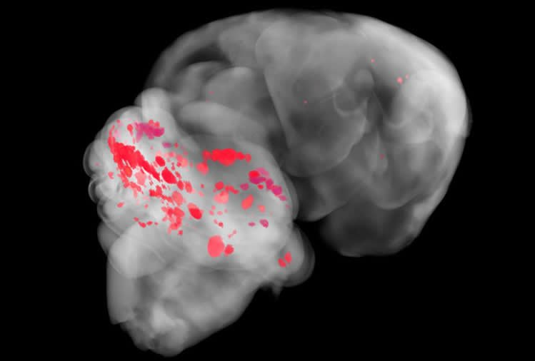 Image shows an MRI of a person with CCM.