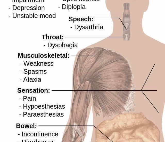 Image shows a diagram of how ms affects the body.