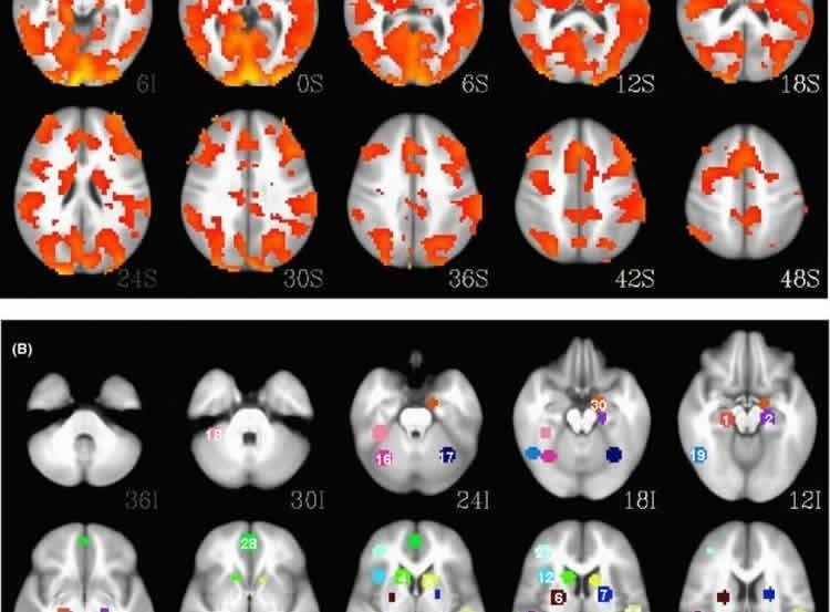 Image shows brain scans of a person with bipolar disorder.