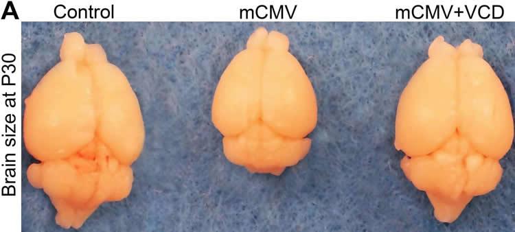 Image shows mouse brains.