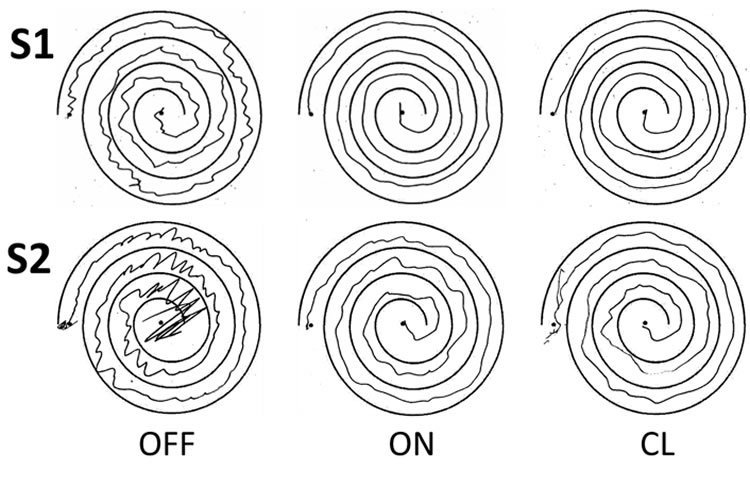 Image shows spiral drawings.