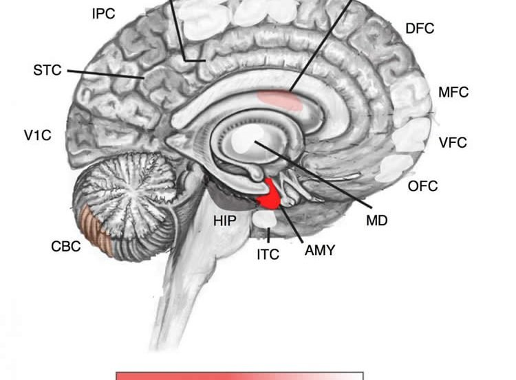 Image shows a brain with the amygdala highlighted in red.