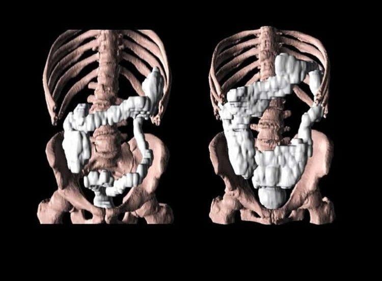Image shows a gut.