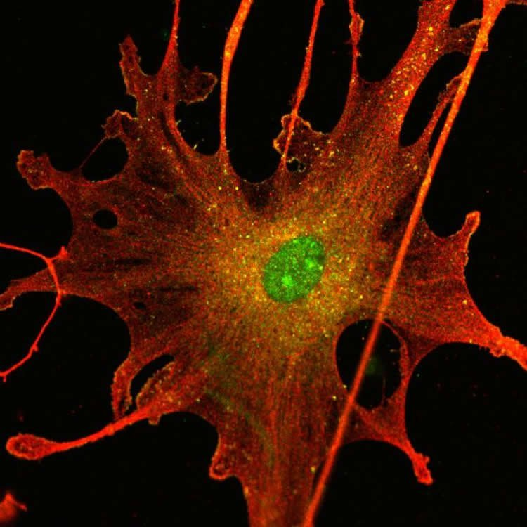an argument that brain cell research offers hope for alzheimers disease patients Monkeys with parkinson's disease plans to use da neurons made from ips cells to treat patients our research has conversion of brain cells offers hope.