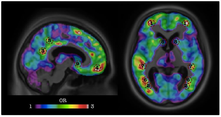 Artificial Intelligence Predicts Dementia Before Onset of Symptoms