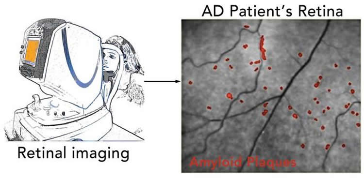 Eye Test Could Predict Alzheimer's Years Before Symptoms Appear