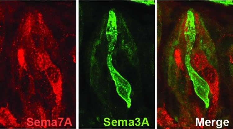 Image shows taste cells.