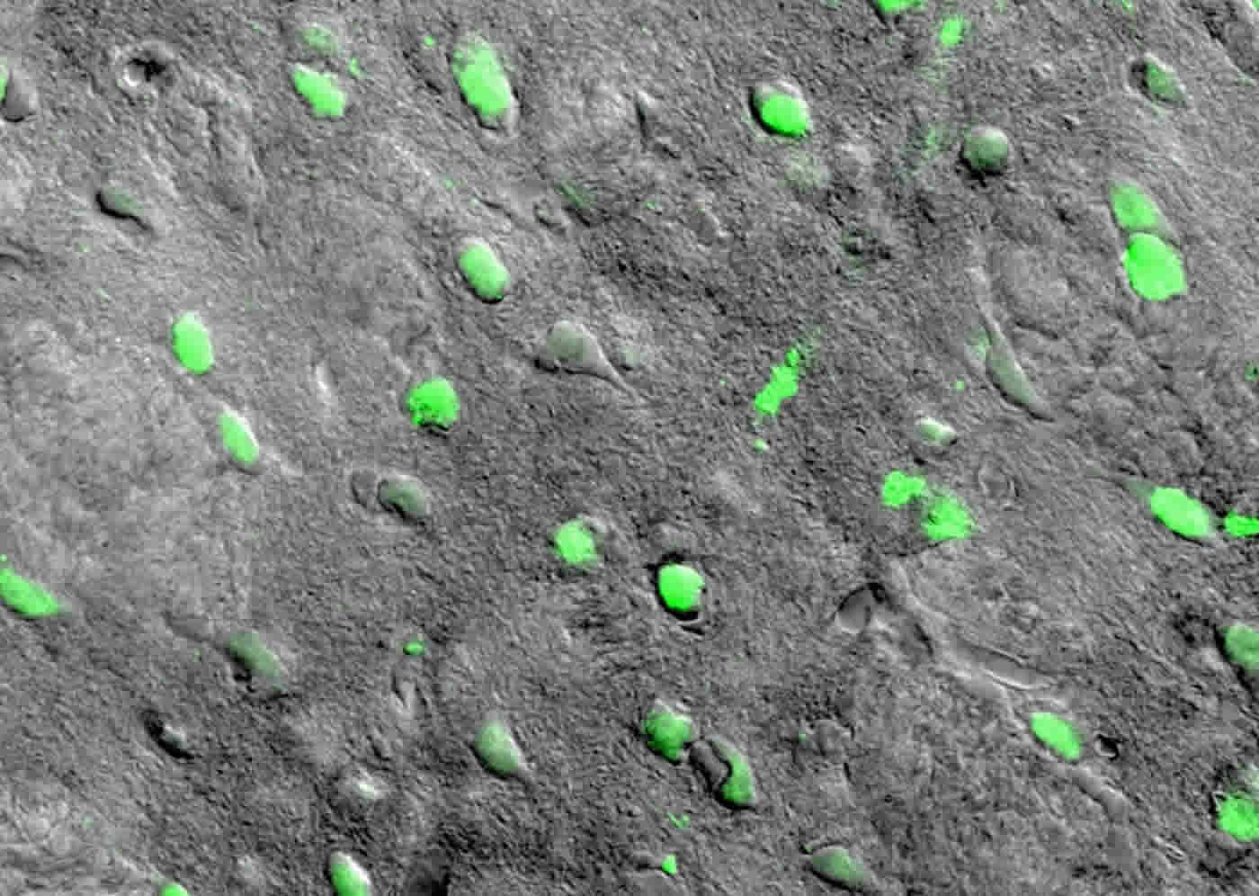 striatal neurons