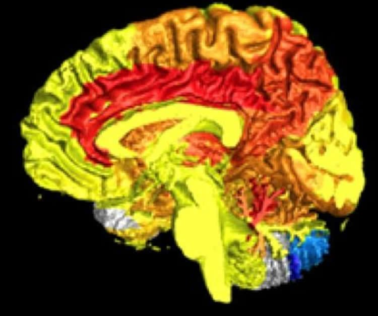 Image shows brain scan.