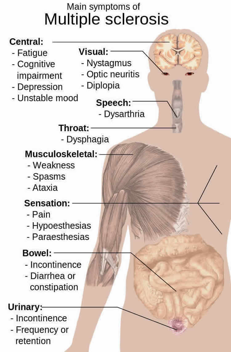 This image shows a diagram of how multiple sclerosis affects the body.