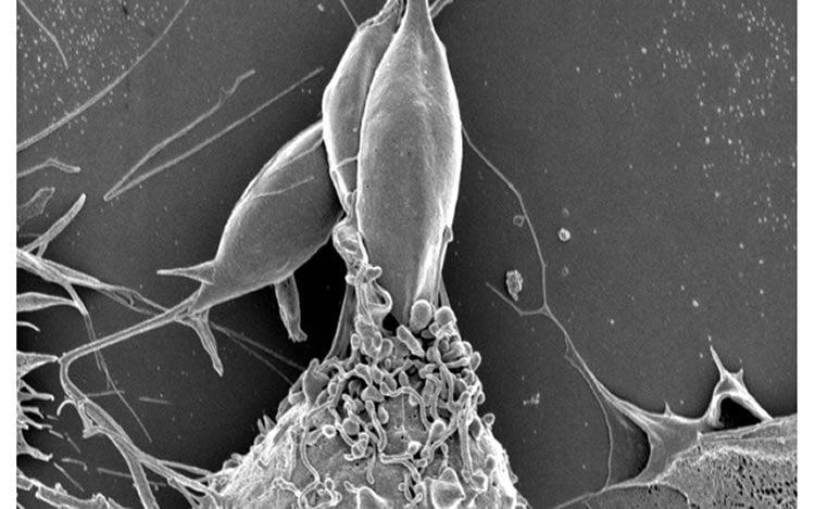Image shows parasite.