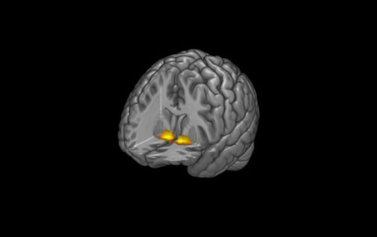 This image shows the location of the ventral striatum.