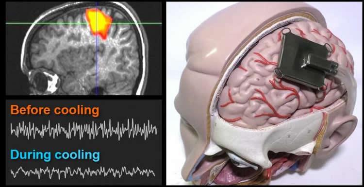 a brain model is shown