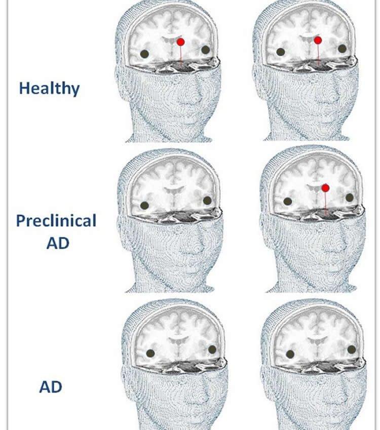 Image shows brain cutaways.