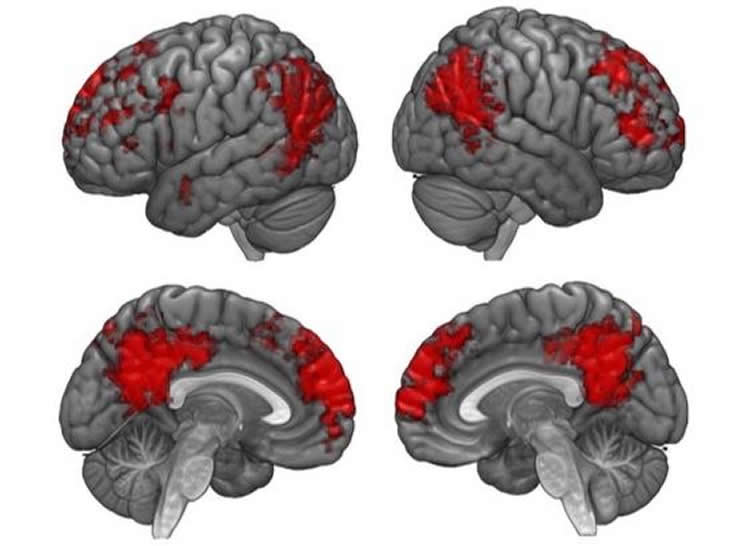 Image shows the brain.