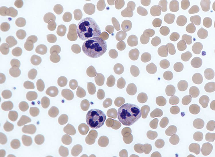Image shows a neutrophils.