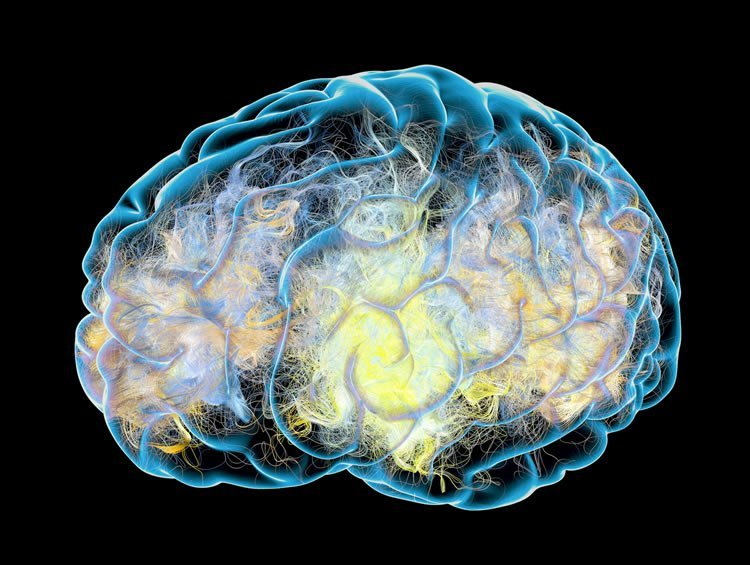 Parkinsons Disease Progression >> Here's What We Think Alzheimer's Does to the Brain ...