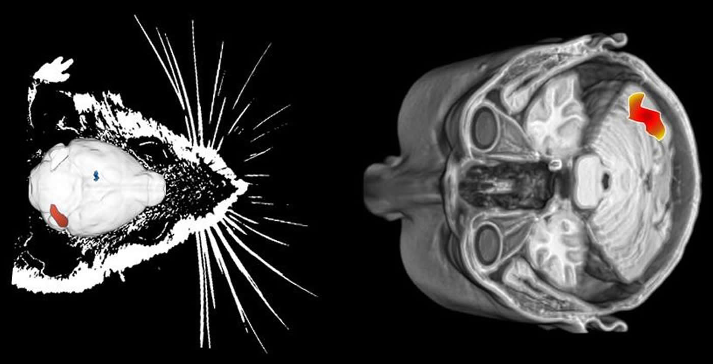 mouse and human brains