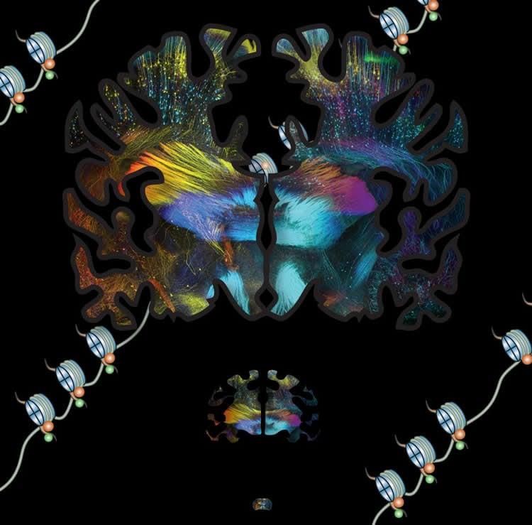 a brain slice