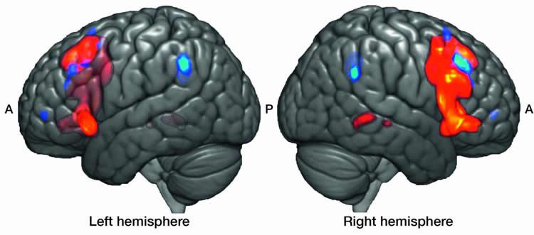 brain scans of broca's area