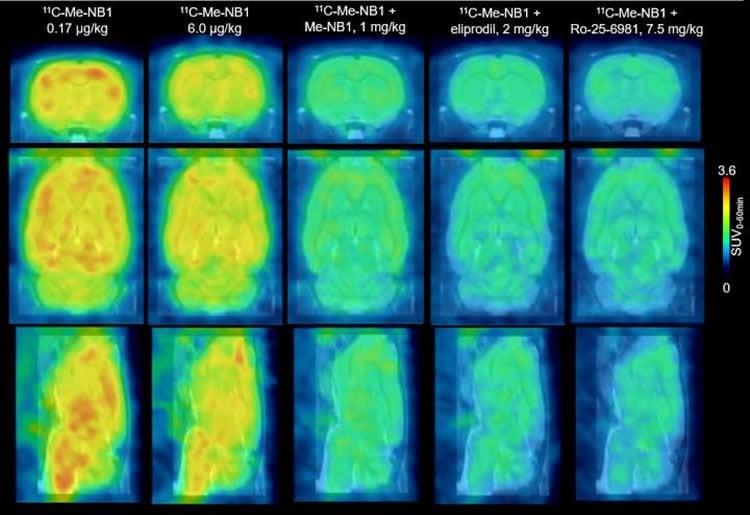 PET scans