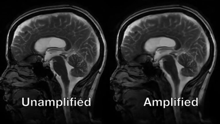 brian scans with the amplified mri