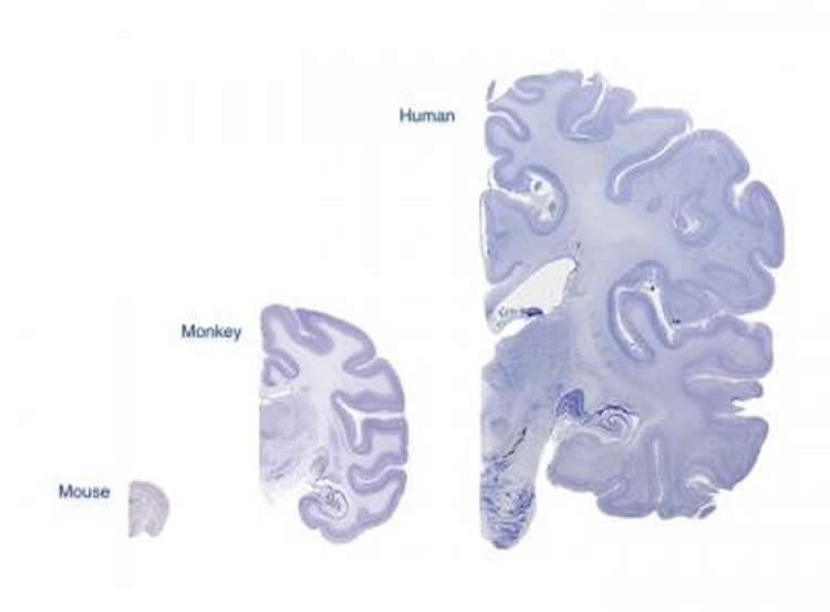 cerebral cortex slices of mice, humans and monkeys