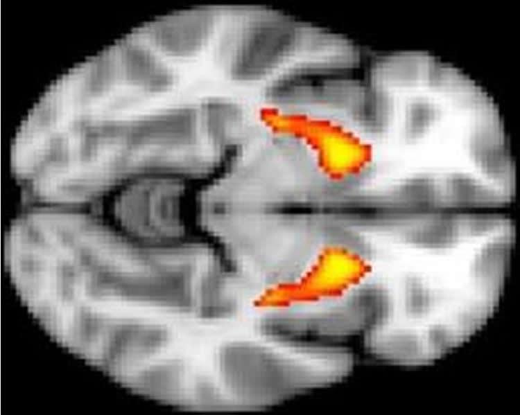 brain scan of striatum